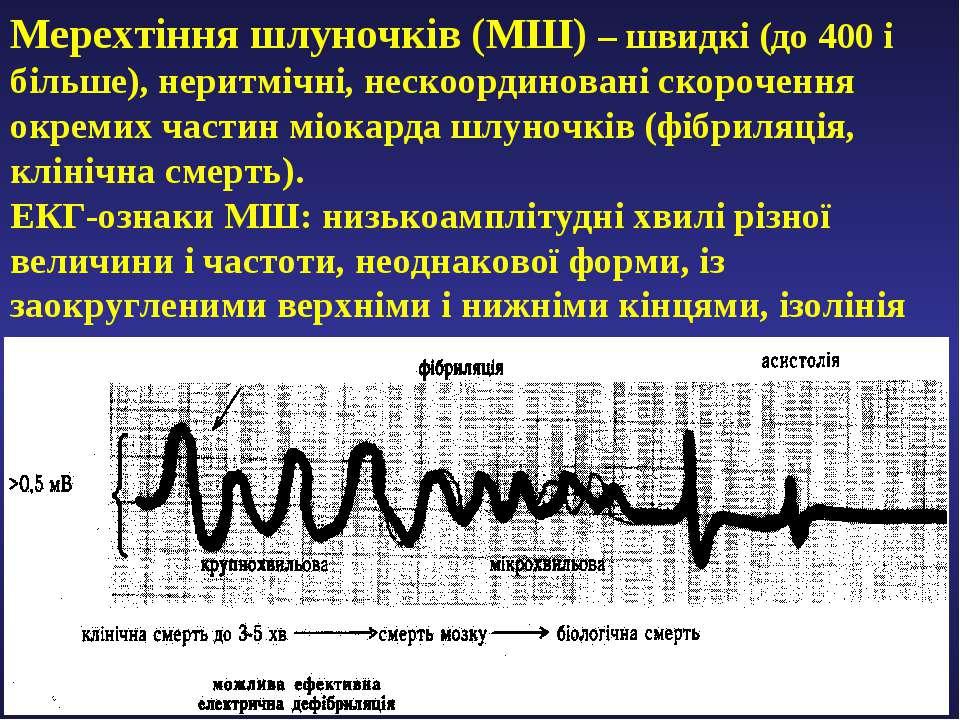 Мерехтіння шлуночків (МШ) – швидкі (до 400 і більше), неритмічні, нескоордино...