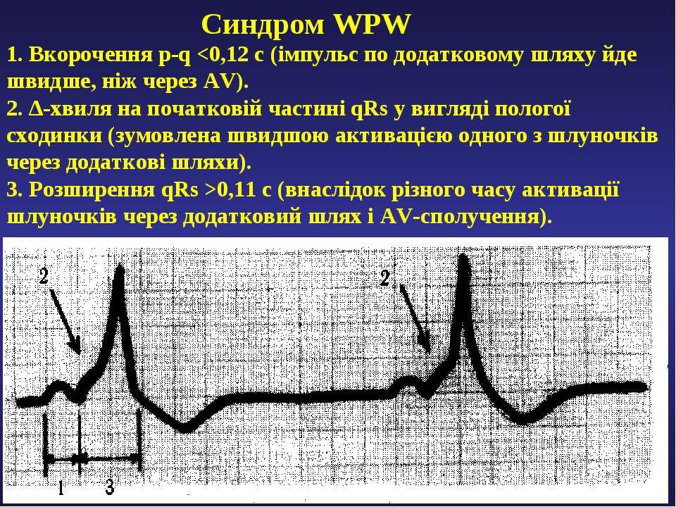 Cиндром WPW 1. Вкорочення p-q 0,11 с (внаслідок різного часу активації шлуноч...