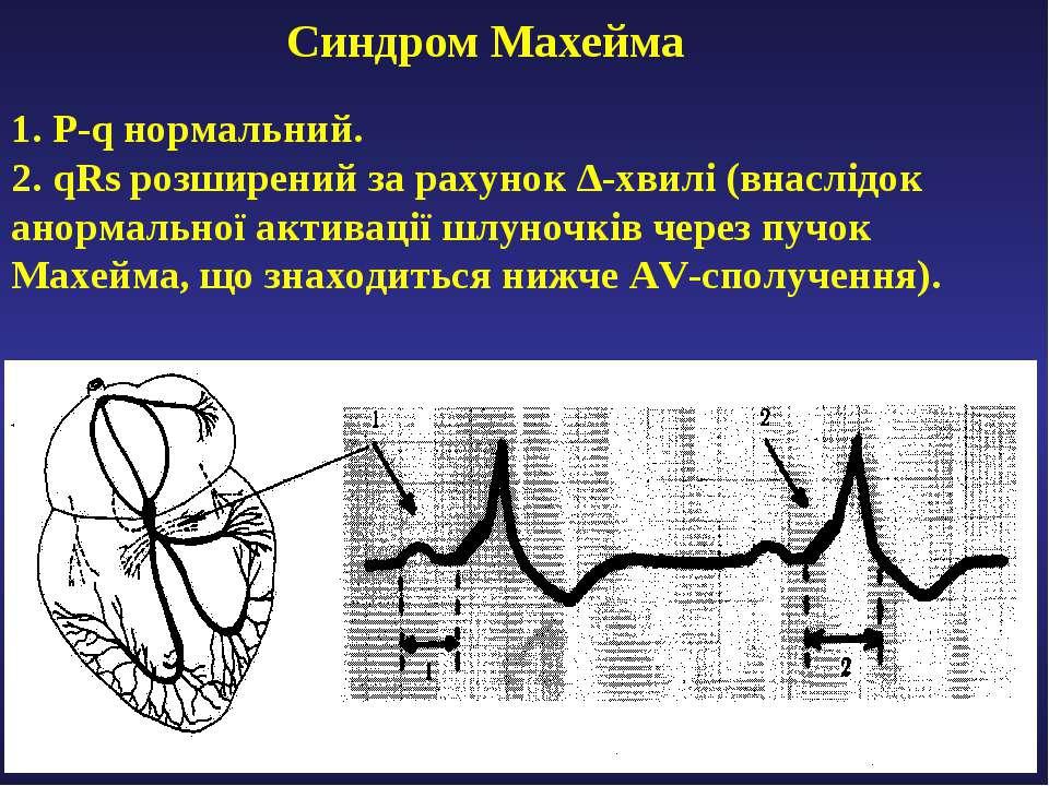 Cиндром Махейма 1. P-q нормальний. 2. qRs розширений за рахунок ∆-хвилі (внас...