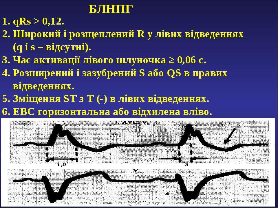 БЛНПГ 1. qRs > 0,12. 2. Широкий і розщеплений R у лівих відведеннях (q i s – ...