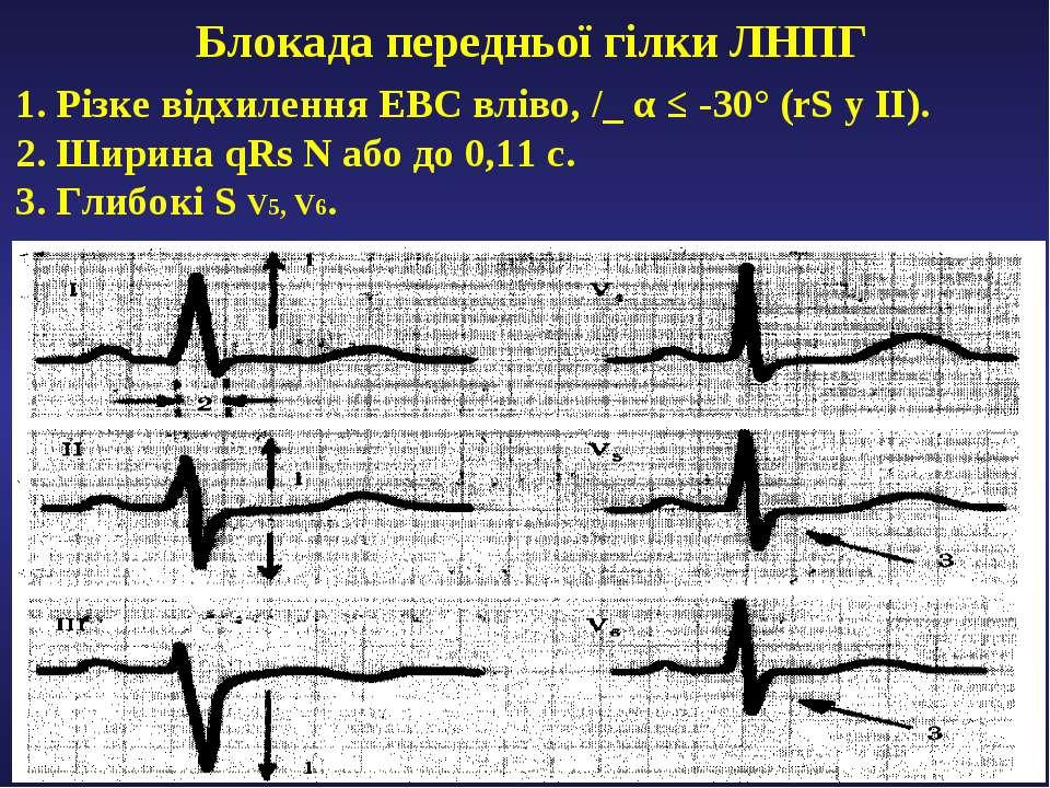 Блокада передньої гілки ЛНПГ 1. Різке відхилення ЕВС вліво, /_ α ≤ -30° (rS у...