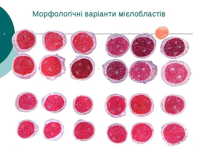 Морфологічні варіанти мієлобластів