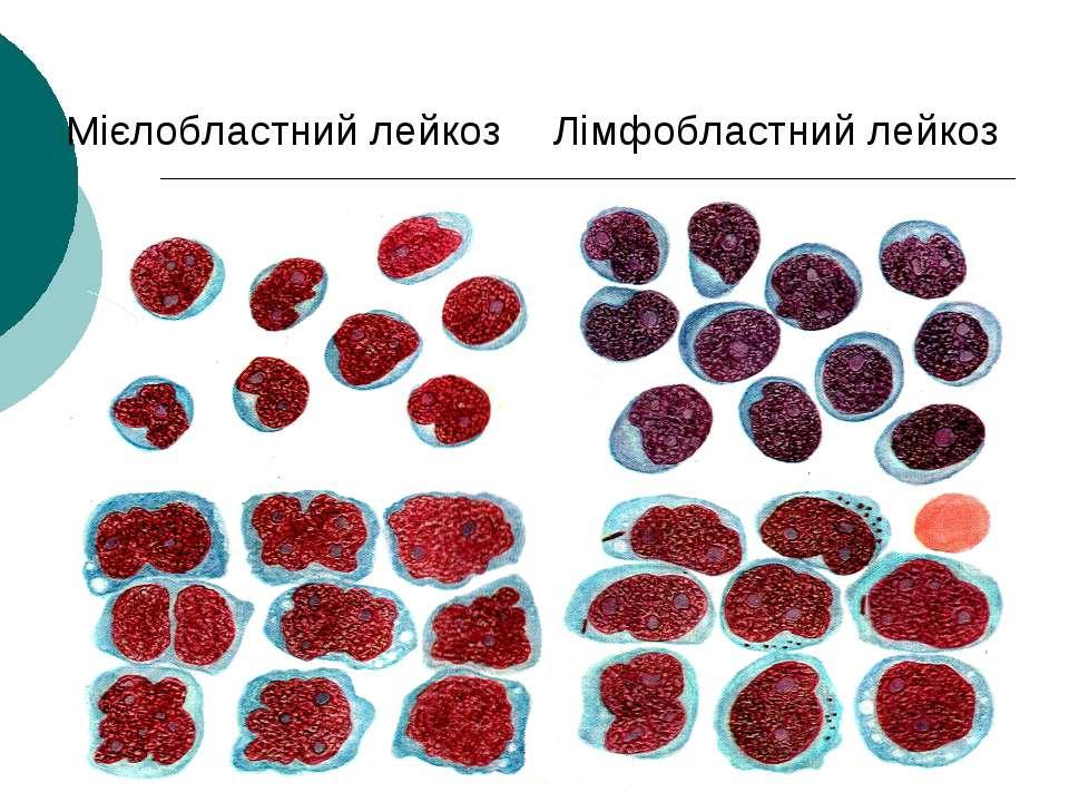 Мієлобластний лейкоз Лімфобластний лейкоз