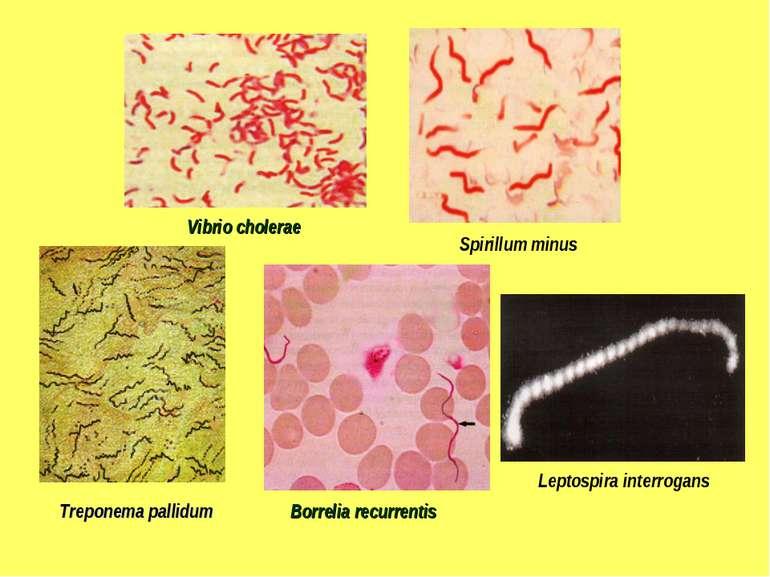 Vibrio cholerae Spirillum minus Treponema pallidum Borrelia recurrentis Lepto...