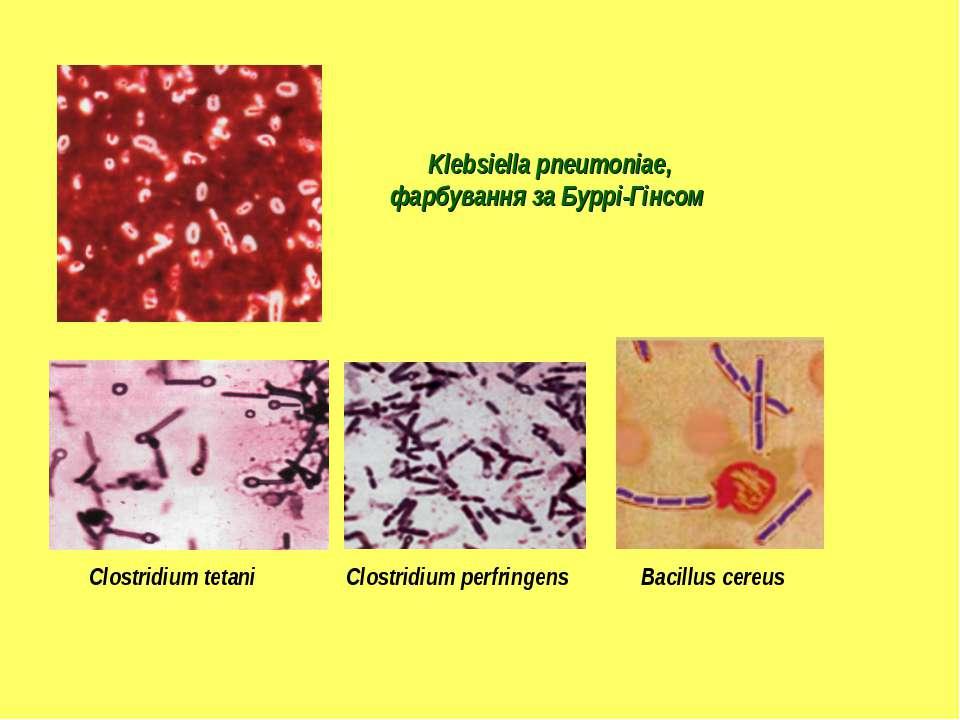 Klebsiella pneumoniae, фарбування за Буррі-Гінсом Clostridium perfringens Clo...
