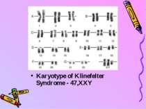 Karyotype of Klinefelter Syndrome - 47,XXY