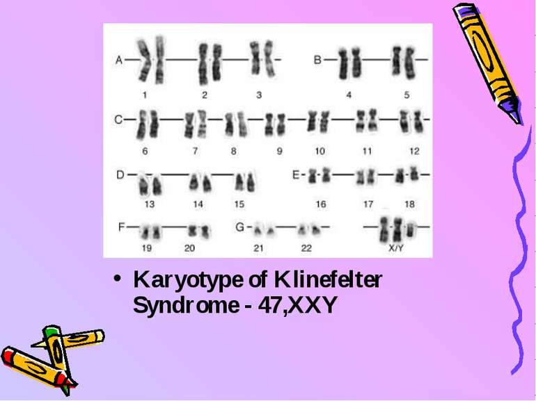 Karyotype of Klinefelter Syndrome - 47,XXY