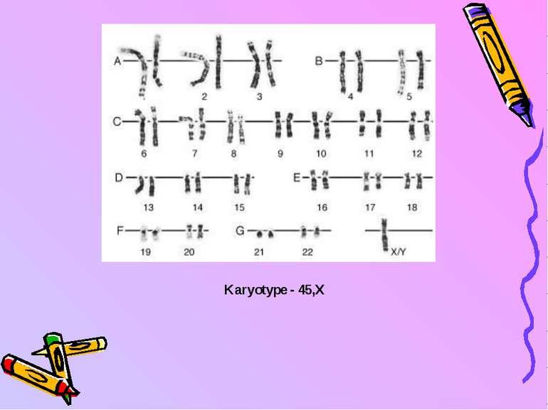 Karyotype - 45,X