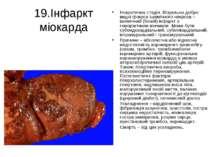 19.Інфаркт міокарда Некротична стадія. Візуально добре видні фокуси ішемічног...