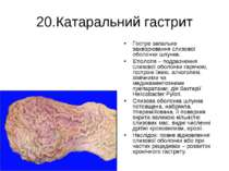 20.Катаральний гастрит Гостре запальне захворювання слизової оболонки шлунка....