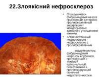 22.Злоякісний нефросклероз Определяется фибриноидный некроз приносящих артери...