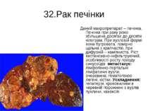 32.Рак печінки Даний макропрепарат – печінка. Печінка при раку різко збільшен...