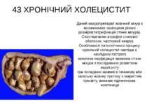 43 ХРОНІЧНИЙ ХОЛЕЦИСТИТ Даний макропрепарат жовчний міхур з множинними камінц...