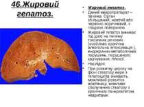 46.Жировий гепатоз. Жировий гепатоз. Даний макропрепарат – печінка. Орган збі...