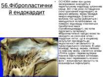 56.Фібропластичний ендокардит OCHOBHi змiни при цьому захворюваннi знаходять ...