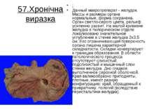 57.Хронічна виразка : Данный макропрепарат - желудок. Массы и размеры органа ...