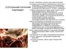 10.Вторинний септичний ендокардит За клін. перебігом-гострий, підгострий хрон...