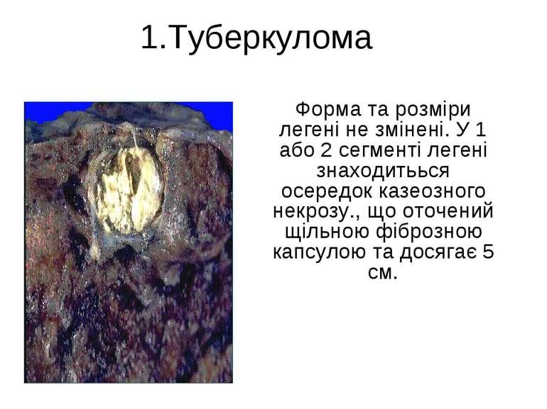 1.Туберкулома Форма та розміри легені не змінені. У 1 або 2 сегменті легені з...