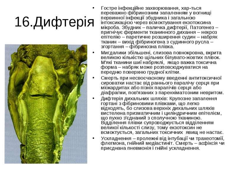 16.Дифтерія Гостре інфекційне захворювання, хар-ться переважно фібринозним за...