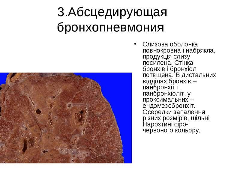 3.Абсцедирующая бронхопневмония Слизова оболонка повнокровна і набрякла, прод...