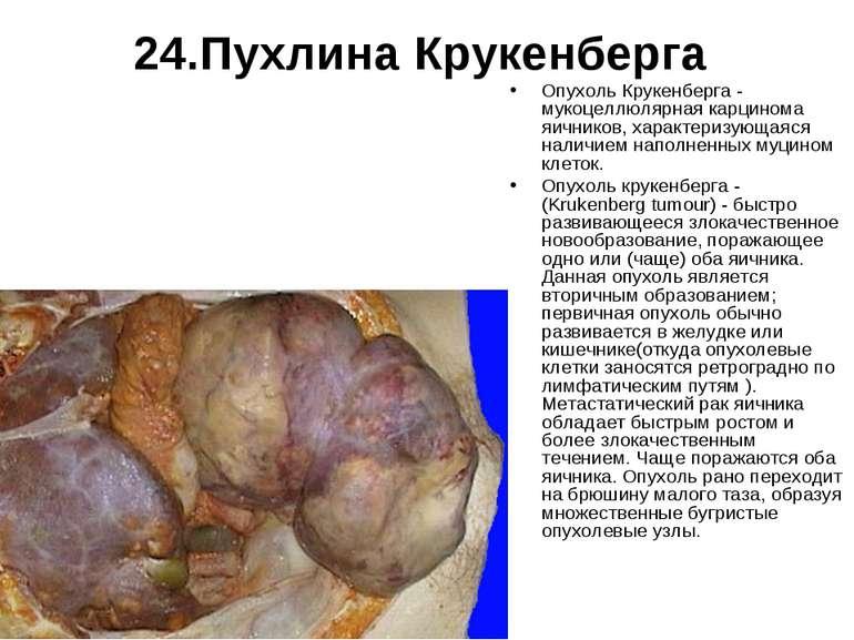 24.Пухлина Крукенберга Опухоль Крукенберга - мукоцеллюлярная карцинома яичник...