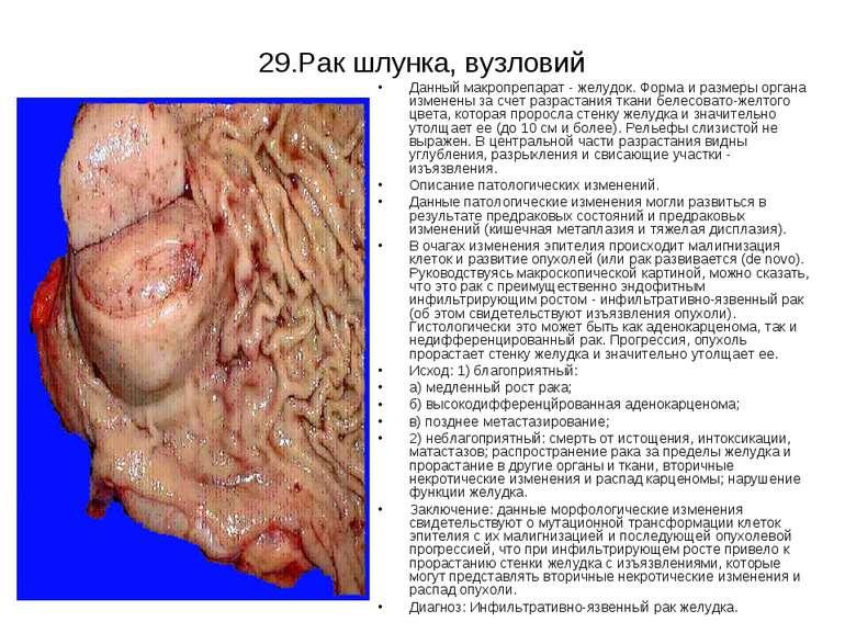 29.Рак шлунка, вузловий Данный макропрепарат - желудок. Форма и размеры орган...