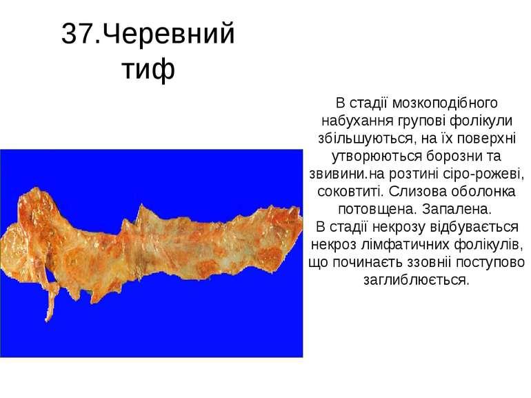 37.Черевний тиф В стадії мозкоподібного набухання групові фолікули збільшують...
