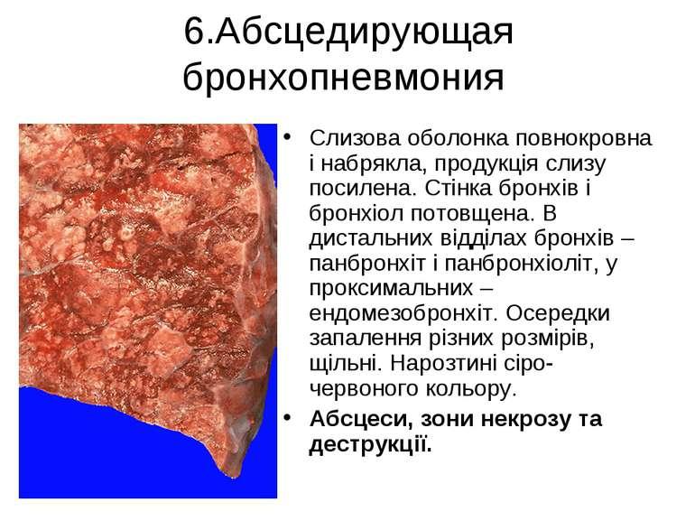 6.Абсцедирующая бронхопневмония Слизова оболонка повнокровна і набрякла, прод...