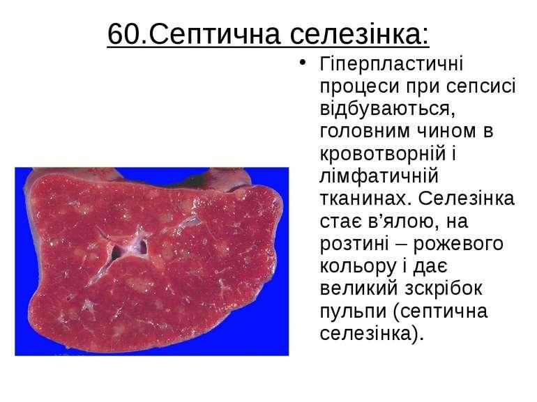 60.Септична селезінка: Гіперпластичні процеси при сепсисі відбуваються, голов...