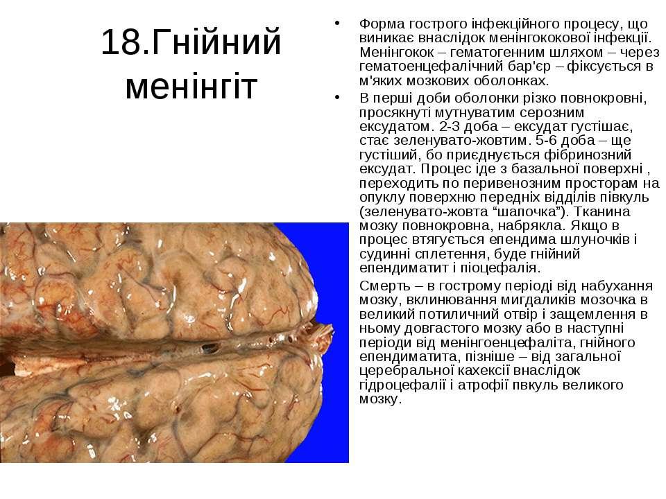 18.Гнійний менінгіт Форма гострого інфекційного процесу, що виникає внаслідок...