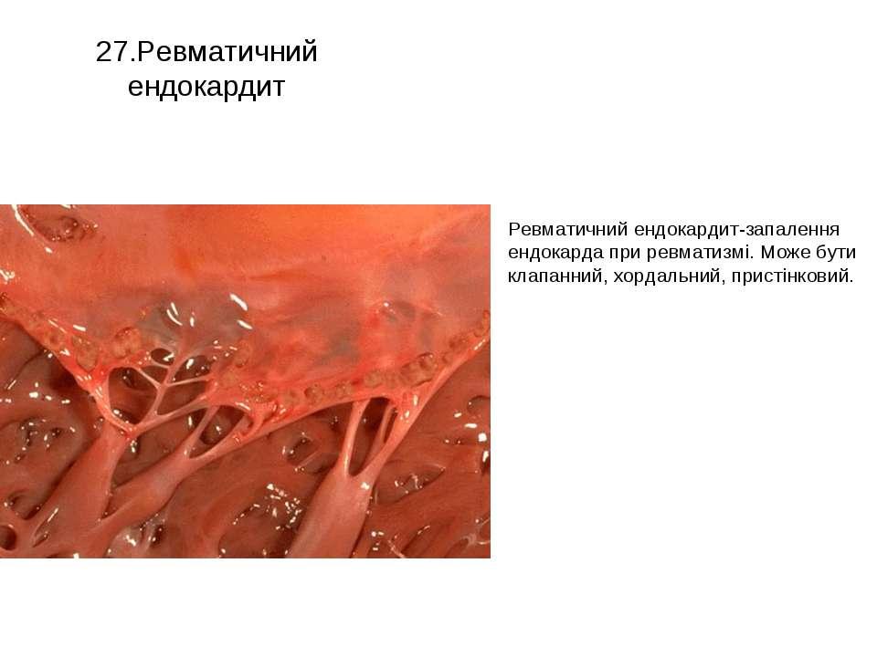 27.Ревматичний ендокардит Ревматичний ендокардит-запалення ендокарда при ревм...