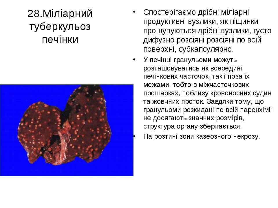 28.Міліарний туберкульоз печінки Спостерігаємо дрібні міліарні продуктивні ву...