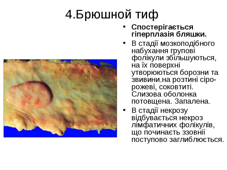 4.Брюшной тиф Спостерігається гіперплазія бляшки. В стадії мозкоподібного наб...