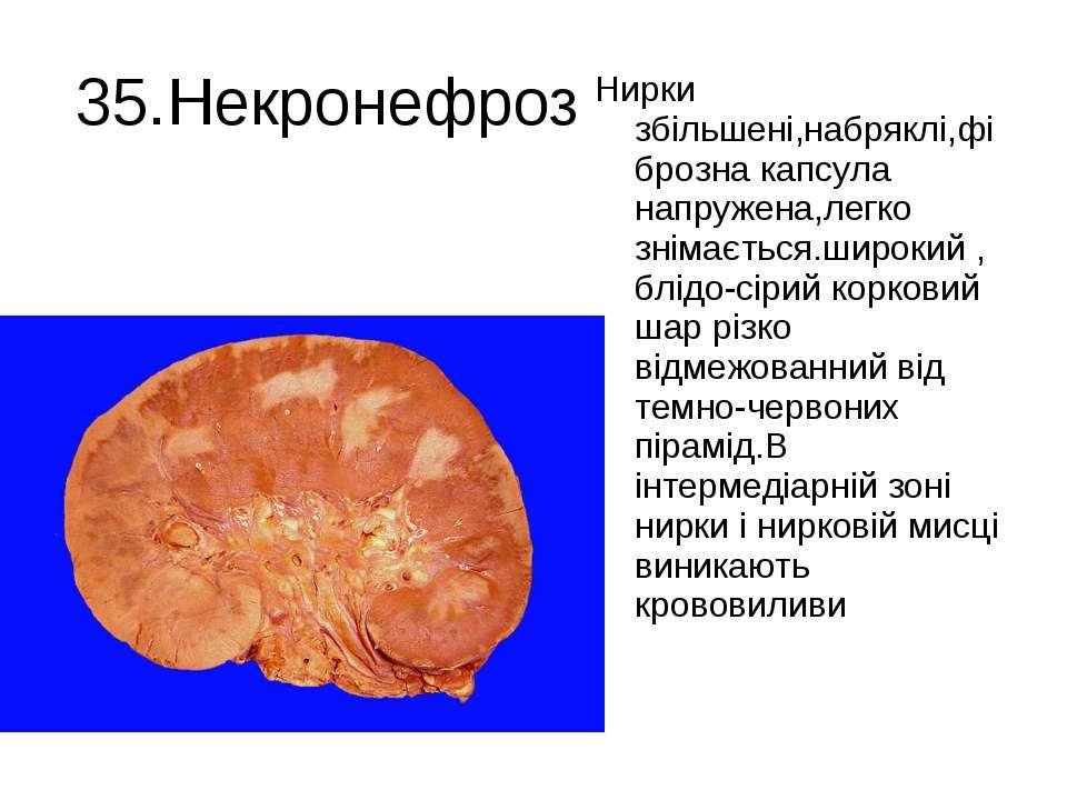 35.Некронефроз Нирки збільшені,набряклі,фіброзна капсула напружена,легко знім...