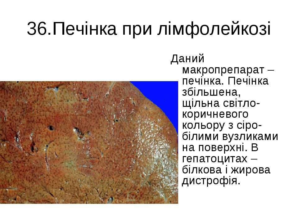 36.Печінка при лімфолейкозі Даний макропрепарат – печінка. Печінка збільшена,...