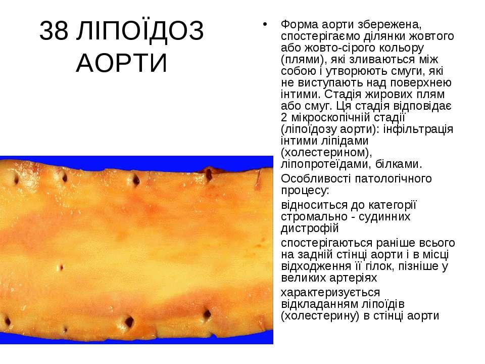 38 ЛІПОЇДОЗ АОРТИ Форма аорти збережена, спостерігаємо ділянки жовтого або жо...
