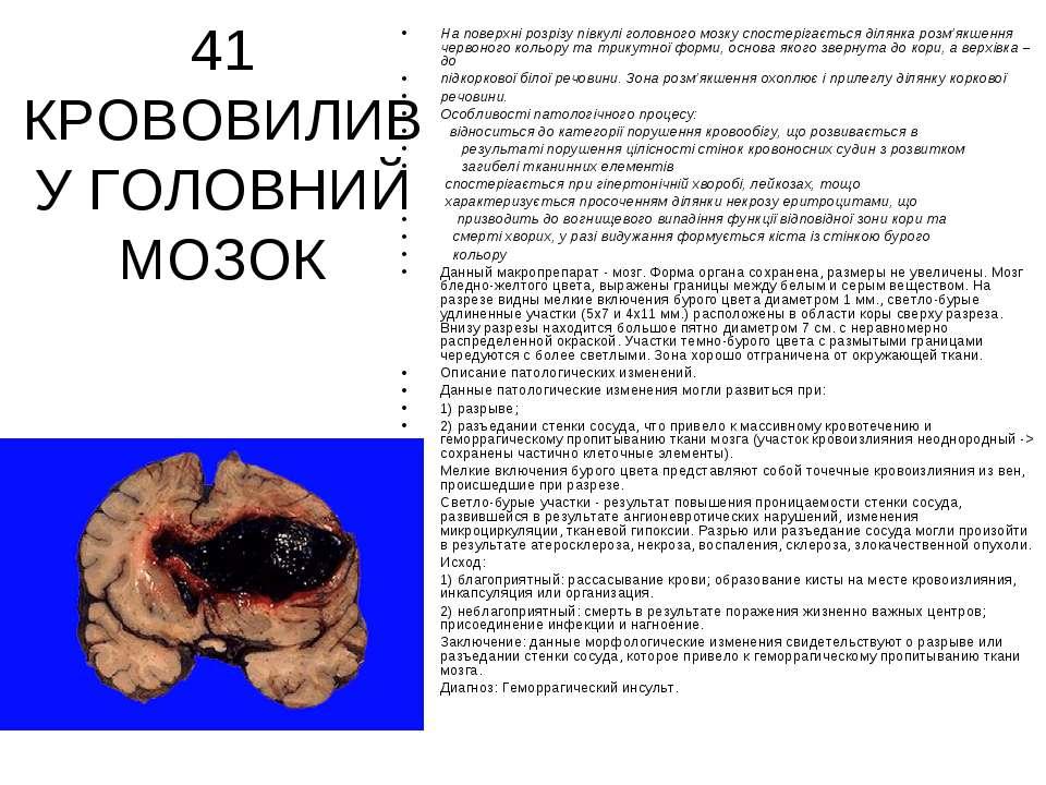 41 КРОВОВИЛИВ У ГОЛОВНИЙ МОЗОК На поверхні розрізу півкулі головного мозку сп...