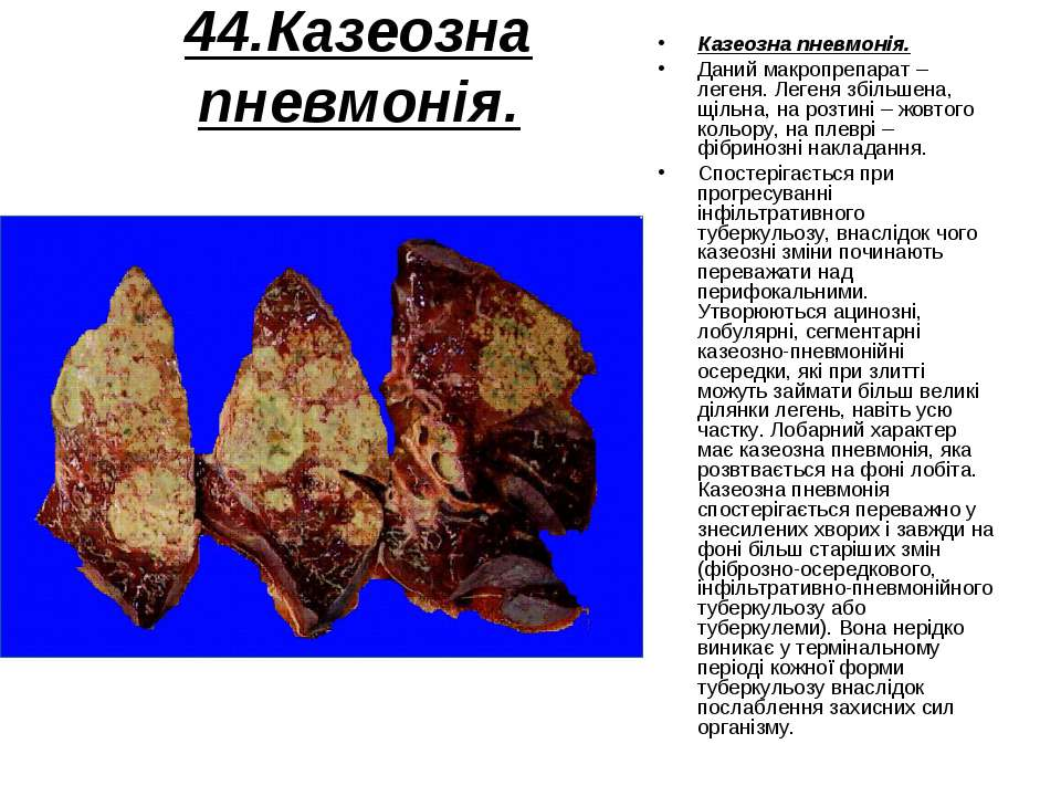 44.Казеозна пневмонія. Казеозна пневмонія. Даний макропрепарат – легеня. Леге...