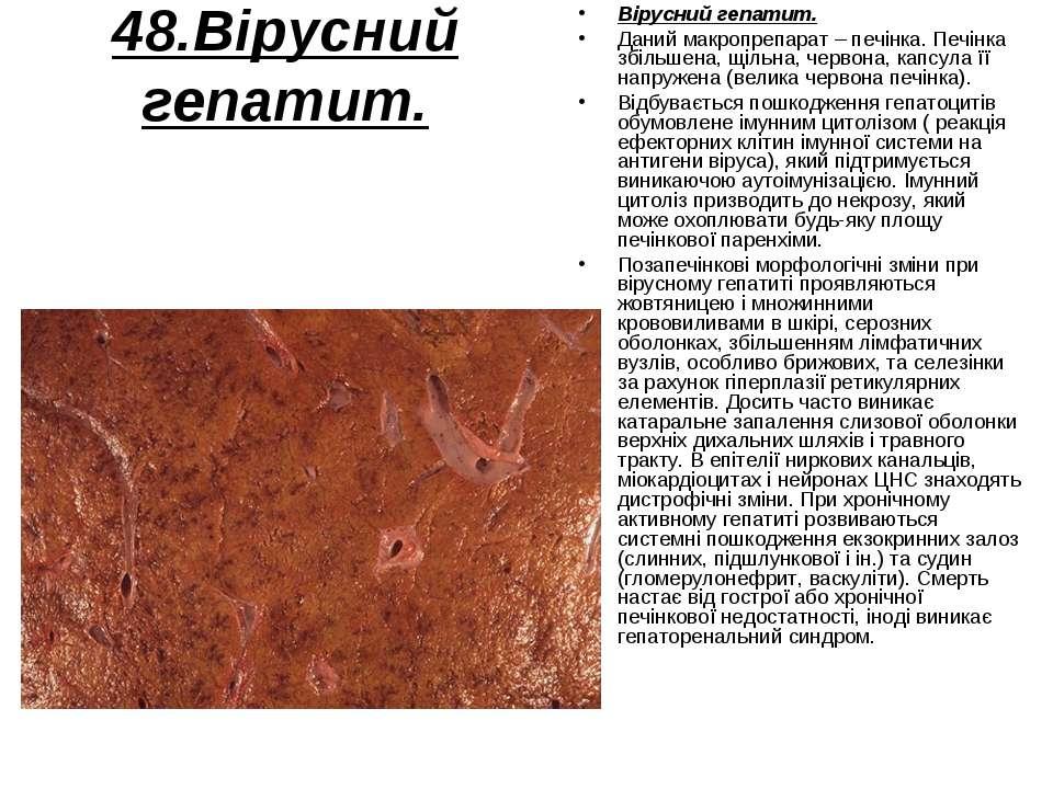 48.Вірусний гепатит. Вірусний гепатит. Даний макропрепарат – печінка. Печінка...