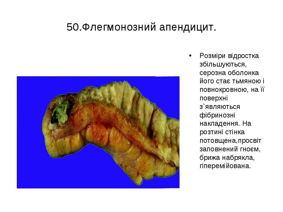 50.Флегмонозний апендицит. Розміри відростка збільшуються, серозна оболонка й...