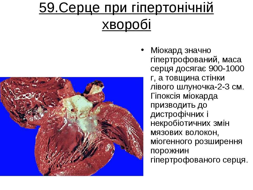 59.Серце при гіпертонічній хворобі Міокард значно гіпертрофований, маса серця...