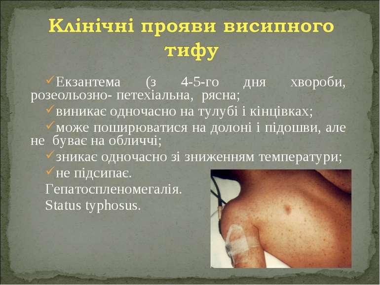 Екзантема (з 4-5-го дня хвороби, розеольозно- петехіальна, рясна; виникає одн...