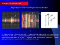 а б в а – паралелепіпед у вільному просторі; б – паралелепіпед за діелектричн...