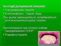 На стадії рубцювання показані: Ультразвукова терапія Електрофорез - лідази, й...
