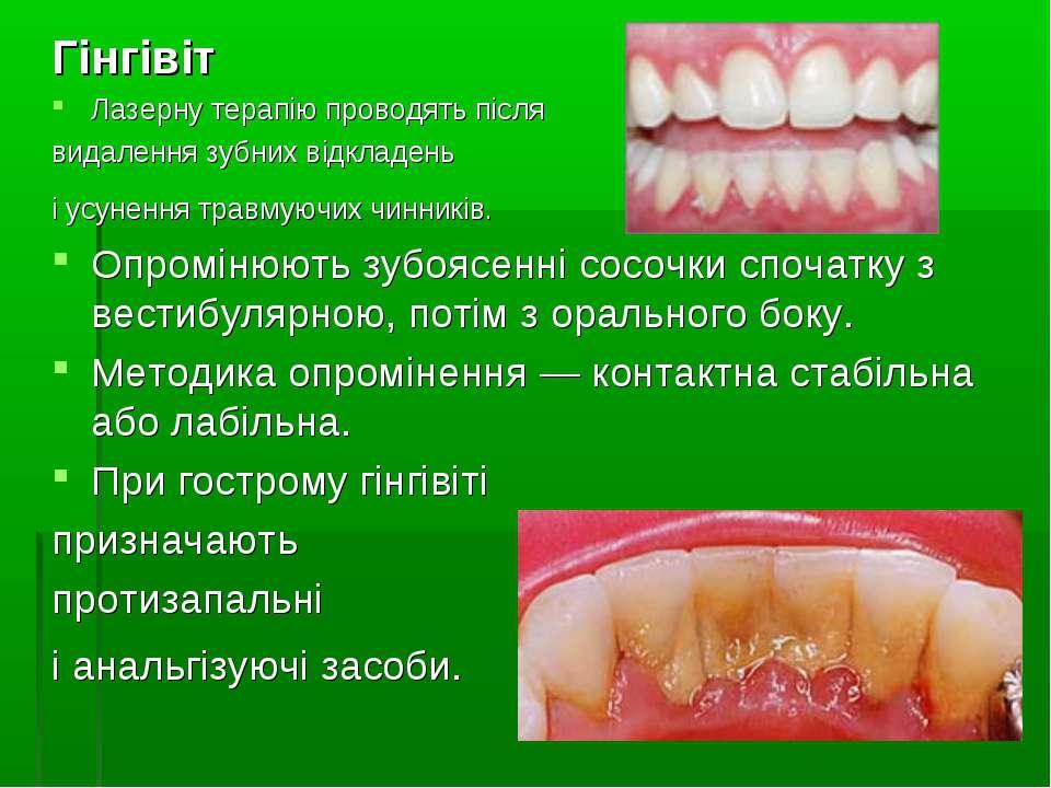 Гінгівіт Лазерну терапію проводять після видалення зубних відкладень і усунен...