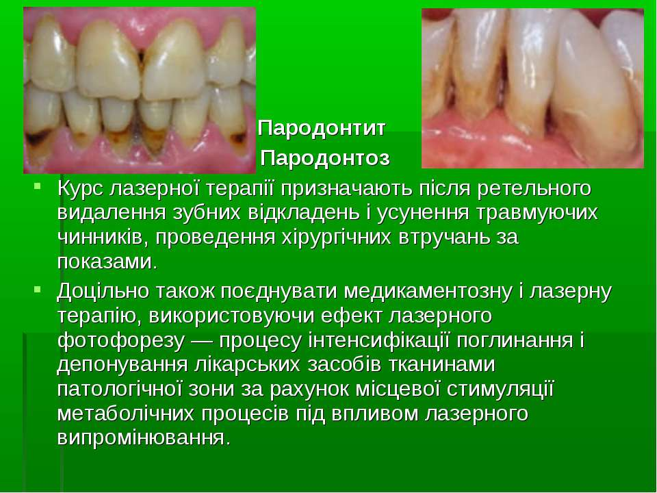 Пародонтит Пародонтоз Курс лазерної терапії призначають після ретельного вида...