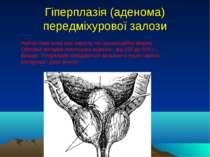 Гіперплазія (аденома) передміхурової залози Найчастіше вона має округлу чи гр...
