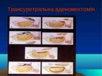 Трансуретральна аденомектомія