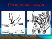 Пункція сечового міхура