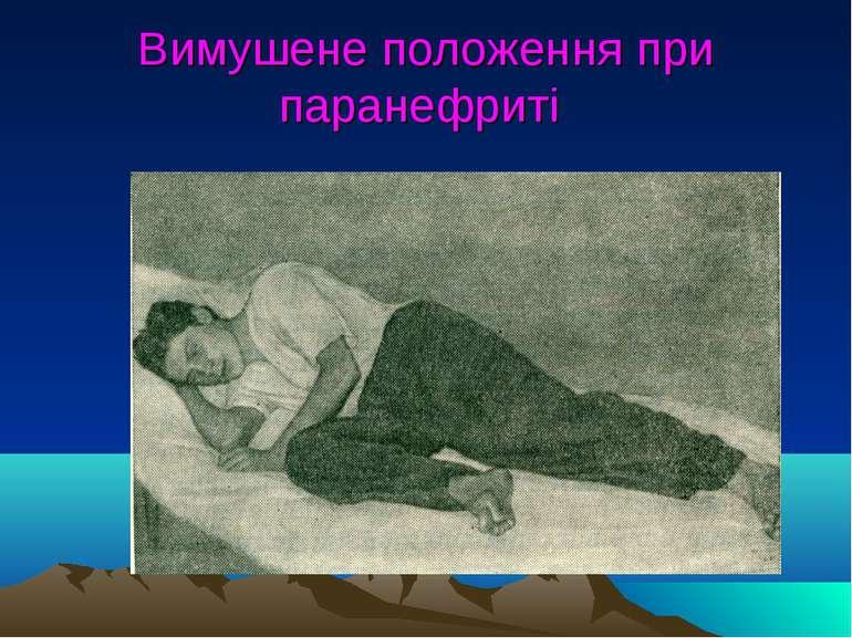 Вимушене положення при паранефриті